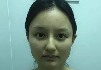 下颌角整形安全吗?选对医院很重要