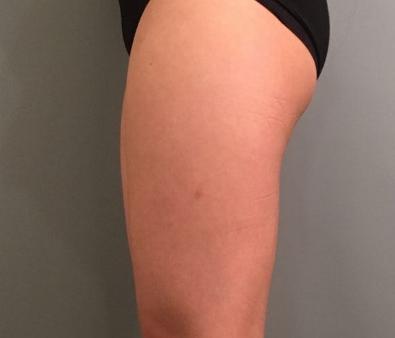 重庆大腿吸脂后腿围瘦了一大圈