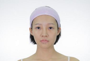 广州曙光假体隆鼻价格14400元