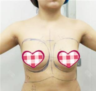 假体隆胸第七天恢复图