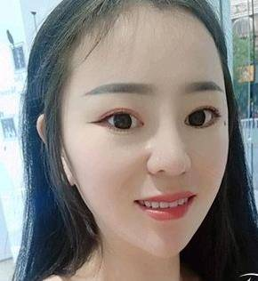 上海九院下颌角整形磨骨案例分享,心得体会供参考!