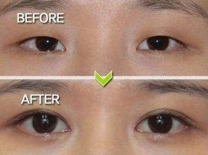 做埋线双眼皮对眼部条件有什么要求?