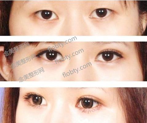 三点定位和全切双眼皮哪个好?