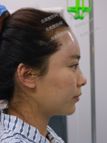 脂肪填充太阳穴和额头图片