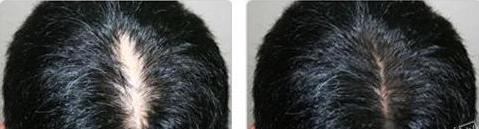 雍禾FUE植发前后对比