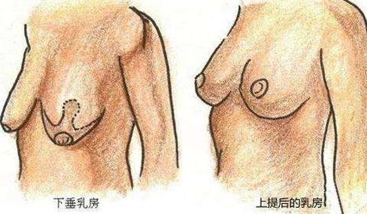 乳房下垂矫正前后