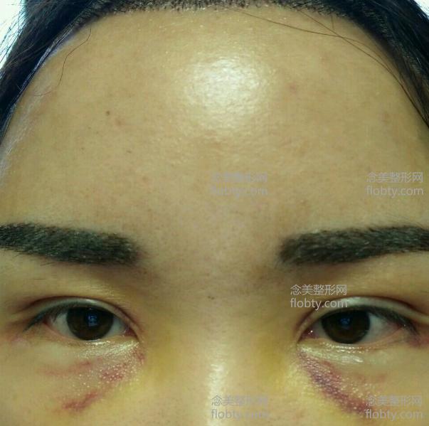 植眉术后一周照片