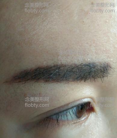 植眉术后一个月图