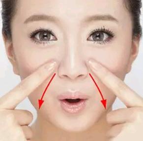 鼻唇沟填充