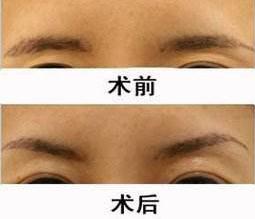 玻尿酸填充眉弓前后对比