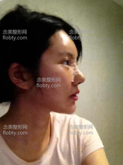 鼻综合术后第1天照片