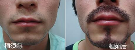 胡须种植前后对比