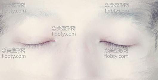 男生全切双眼皮6mm价格4200元