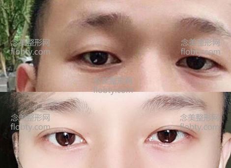男生全切双眼皮6mm术前术后对比图