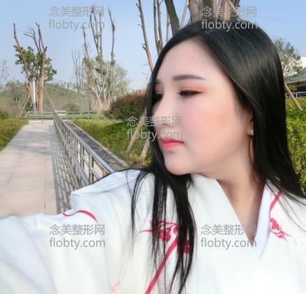 北京冯斌水动力面部吸脂半个月