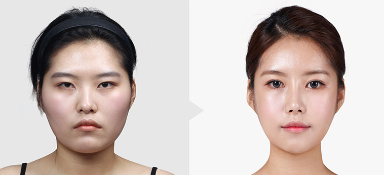 上海华美下颌骨手术前后对比