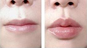 玻尿酸丰微笑唇前后对比