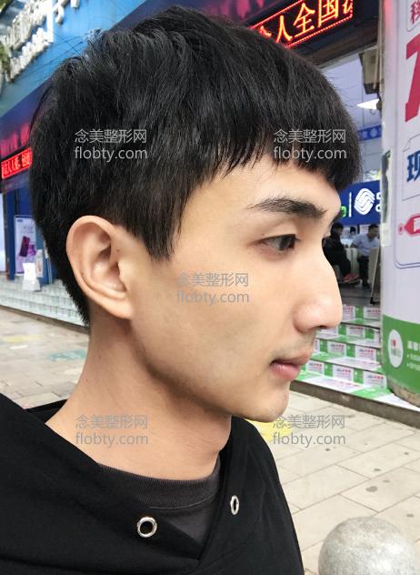 华韩医院做下颌角手术一个月