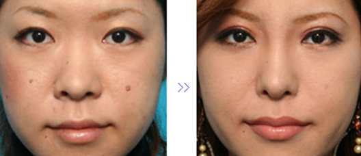鼻孔鼻翼缩小前后对比
