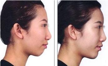 玻尿酸垫下巴前后对比