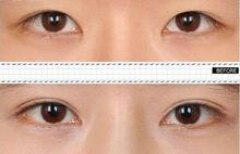 韩式双眼皮前后对比