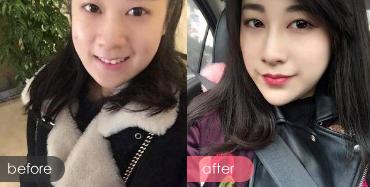 上海华美玻尿酸隆鼻前后对比