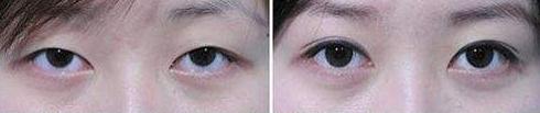 太原巴诺巴奇整形医院双眼皮案例