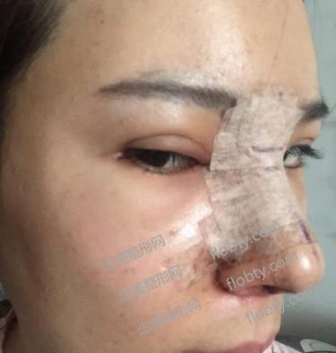 隆鼻修复第二天的照片