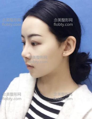 反颌手术一个月照片