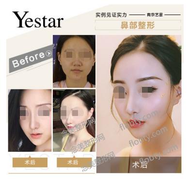 南京艺星美容医院隆鼻