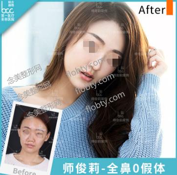 北京联合丽格美容医院隆鼻