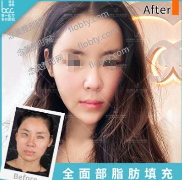 北京联合丽格美容医院脂肪全脸填充