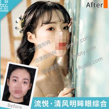 北京联合丽格美容医院双眼皮