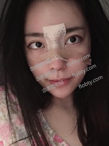 鼻综合修复后照片