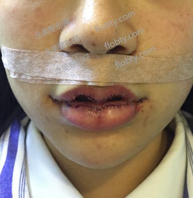 嘴唇整形(M唇)和人中缩短术后照片