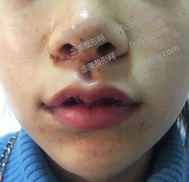 嘴唇整形术后前面几天嘴唇照片