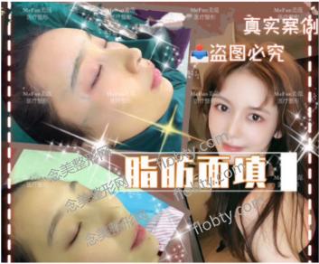南京美范整形医院自体脂肪面部填充案例: