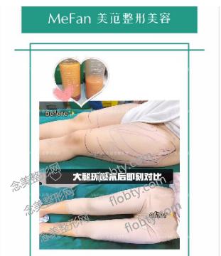 南京美范整形医院大腿吸脂案例: