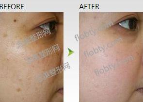 光子嫩肤祛斑前后对比