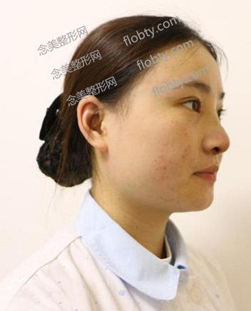 隆鼻和割双眼皮照片