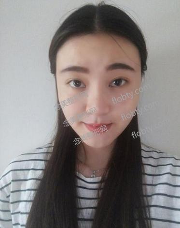 北京延世医院做膨体隆鼻和韩式双眼皮一个月后的恢复效果图