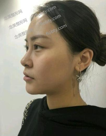 面部凹陷脂肪填充术前照片