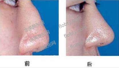 驼峰鼻矫正前后对比