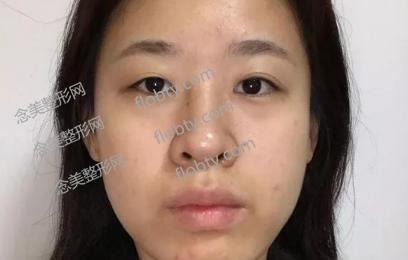 面部吸脂术前照片