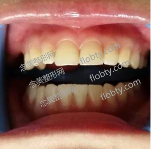 牙齿清洁和美白前的照片