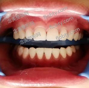 牙齿清洁和冷光美白后的照片