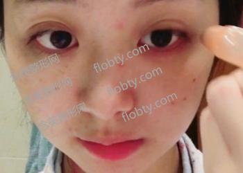 激光祛斑术前照片