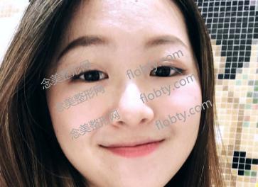 激光祛斑术后照片