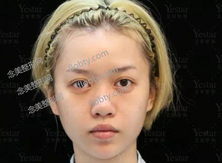艺星鼻综合隆鼻术前照片