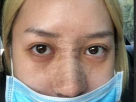 艺星鼻综合隆鼻术后照片